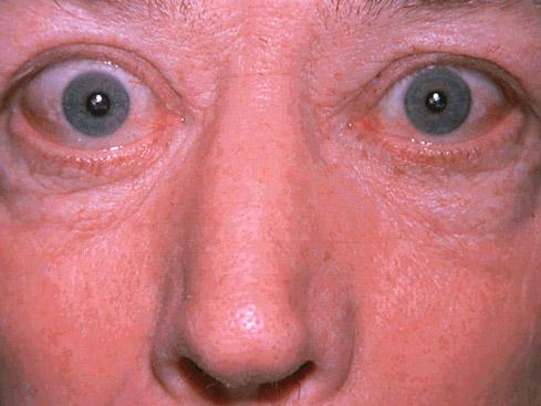 при аллергии опухают лимфоузлы