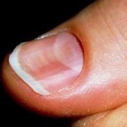 Псориаз ногтей лечение и уход
