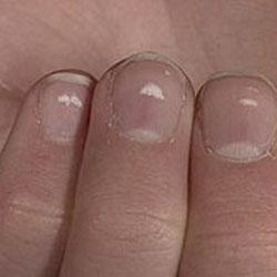 Какие тесты используют врачи для диагностики псориаза ногтей