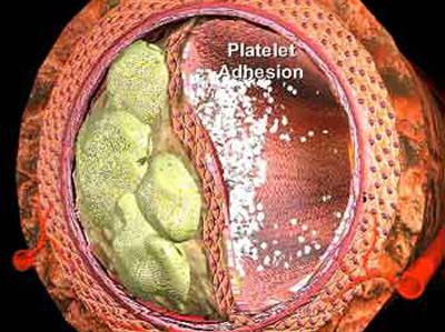 триглицериды понижены холестерин повышен