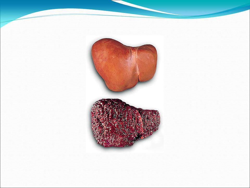 Диабетическая стопа лечение боли в стопе
